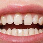 Tự nhiên răng bị thưa có sao không, thưa bác sĩ?