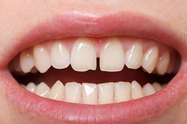 Răng thưa không chỉ khiến răng mất đi vẻ đẹp thẩm mỹ mà còn là nguyên nhân gây nên các bệnh lý răng miệng khác