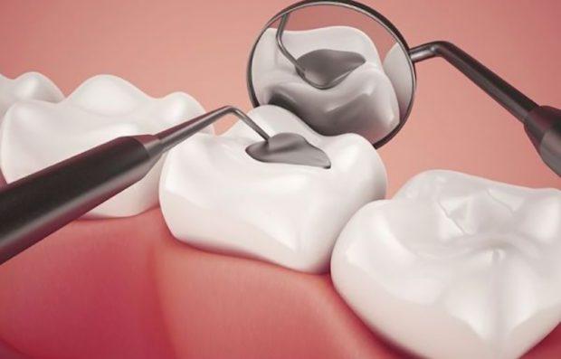 Trám răng xong bị nhức răng kế cận là hiện tượng bình thường sẽ mất sau vài ngày