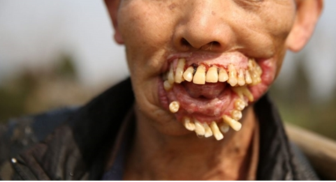 bệnh u răng