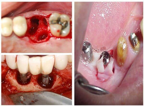 Biến chứng sau khi cấy ghép implant