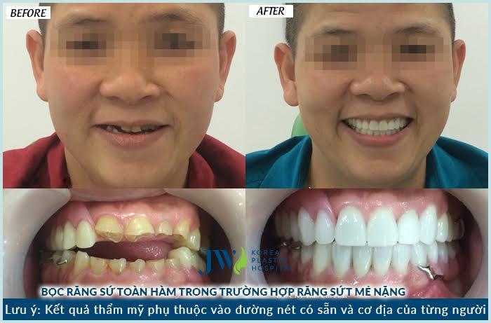 Khách hàng mài răng để thực hiện bọc sứ toàn hàm tại JW