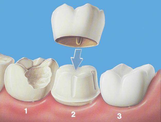 Nhanh chóng bọc sứ cho răng chết tủy để bảo tồn được phần răng thật còn lại