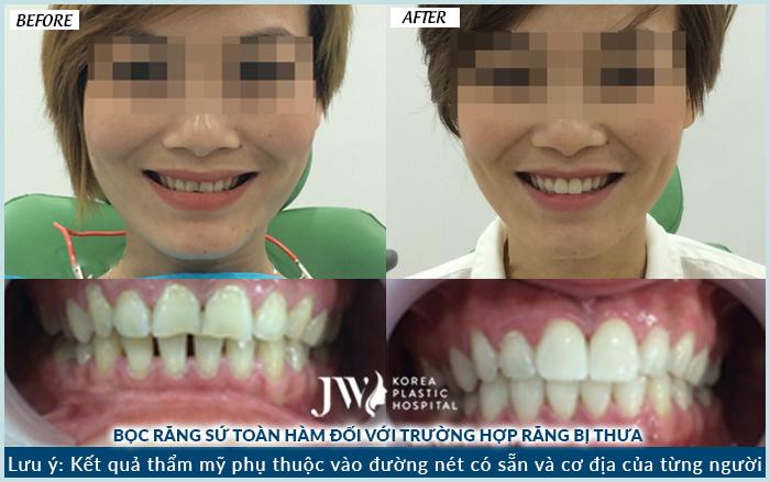 Hình ảnh khách hàng thực hiện bọc răng sứ không kim loại tại JW