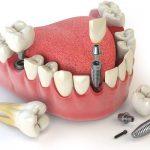 Trồng răng sứ hay cấy ghép Implant để phục hình răng