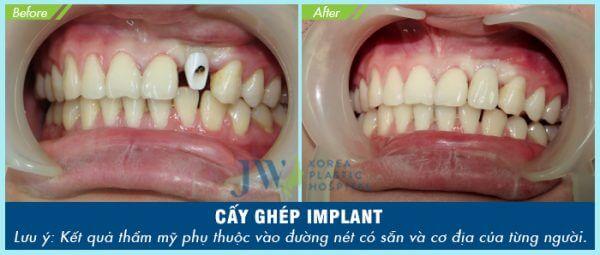 Cấy ghép implant với khách hàng mất 1 răng trên cung hàm
