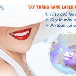 Tẩy trắng răng Laser Whitening – Công nghệ mới cho nụ cười tươi