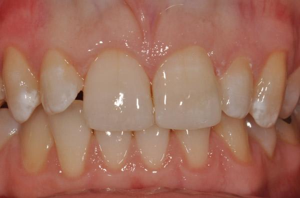 Sau khi tẩy trắng, màu sắc trên răng không đồng đều nhìn rất mất thẩm mỹ