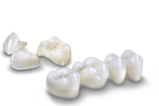 Răng sứ không kim loại đảm bảo được thời gian sử dụng lâu dài