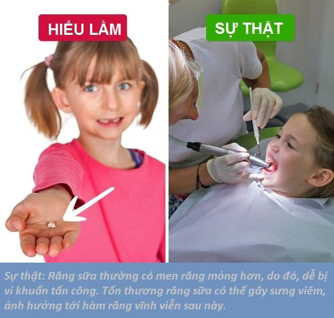 Điều trị cho răng sữa sẽ tránh cho việc ảnh hưởng đến răng vĩnh viễn sau này