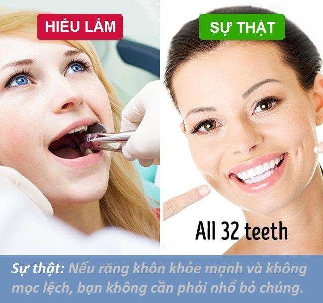 Bạn phải nhổ bỏ răng khôn