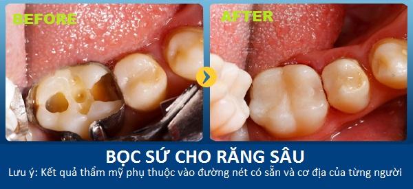 bọc răng sứ cho răng sâu, bọc sứ cho răng sâu