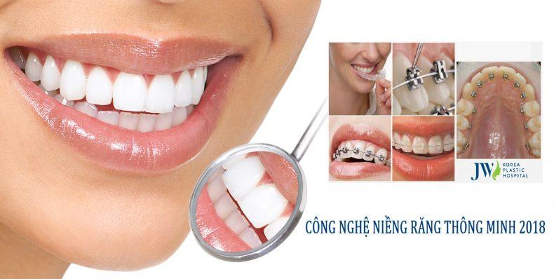 Niềng răng thông minh là cách lựa chọn công nghệ niềng răng phù hợp để điều chỉnh răng mọc sai vị trí trên cung hàm
