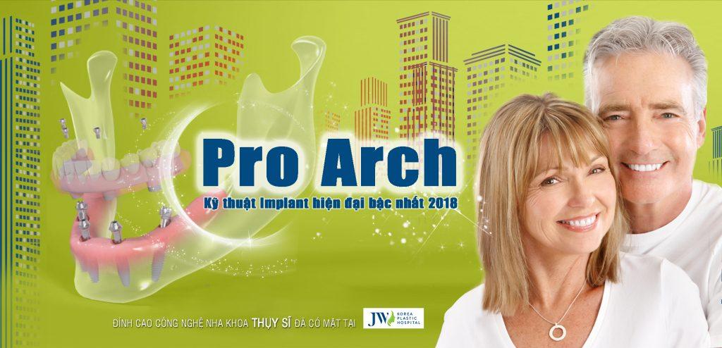 Công nghệ phục hình toàn hàm Pro Arch là gì