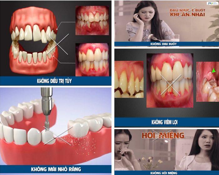 Ưu điểm của bọc răng sứ với công nghệ Porcelain nano 5S