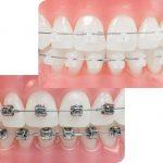 Niềng răng mắc cài tự buộc – giải pháp hiệu quả cho người sợ đau