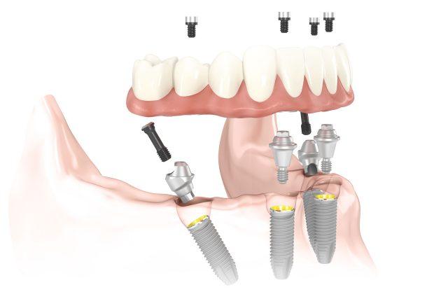 Phục hình toàn hàm với công nghệ cấy ghép implant hiện đại
