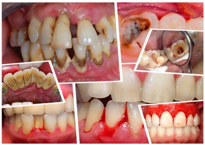 Nếu không khắc phục sớm những khuyết điểm trên răng sẽ khiến răng mắc phải các bệnh lý răng miệng nguy hiểm