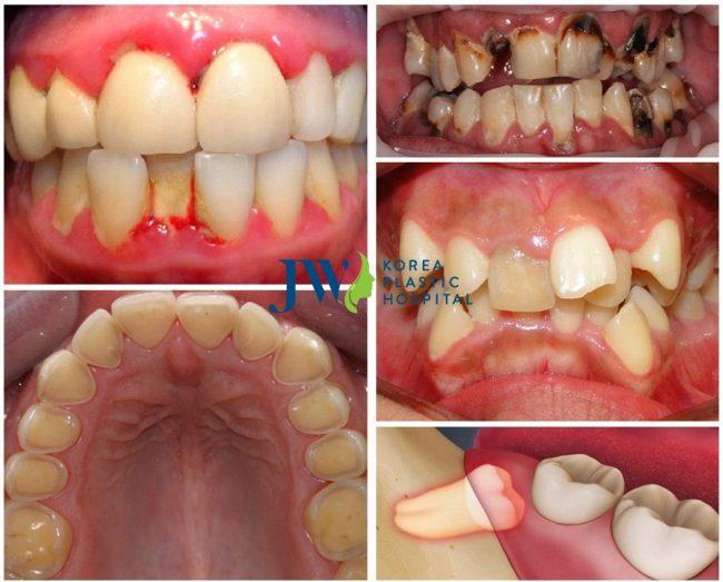 5 bệnh lý răng miệng thường gặp