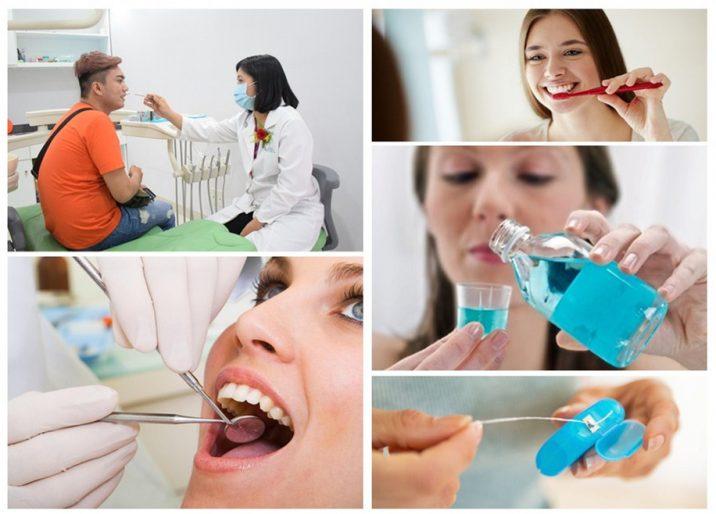 Để duy trì được vết trám dài lâu bạn hãy chăm sóc tốt cho răng sau khi trám