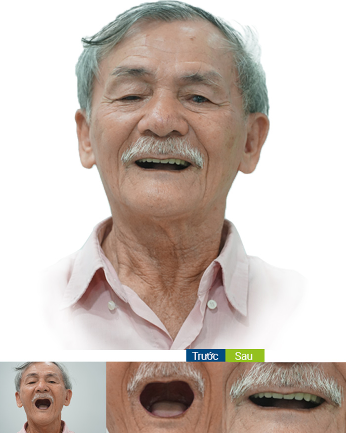 khách hàng cấy ghép implant