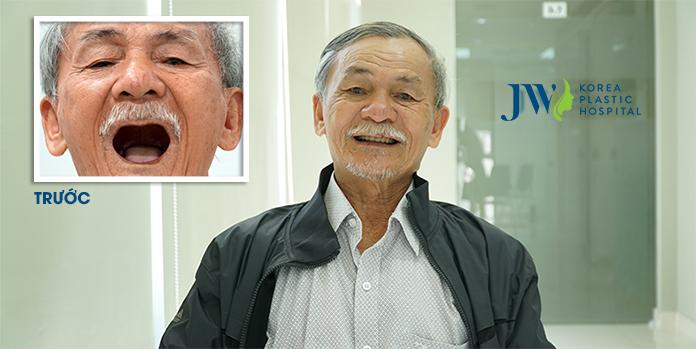 Hình ảnh khách hàng thực hiện cấy ghép implant