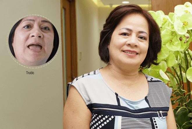 Cô Nguyễn Thị Phụng với nụ cười tự tin sau khi phục hình toàn hàm
