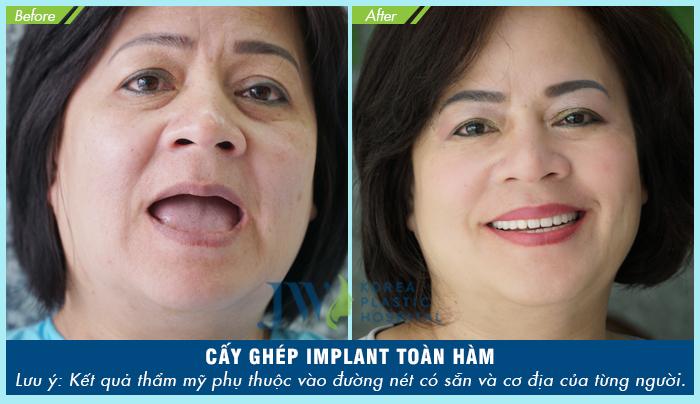 Hình ảnh khách hàng cấy ghép implant toàn hàm