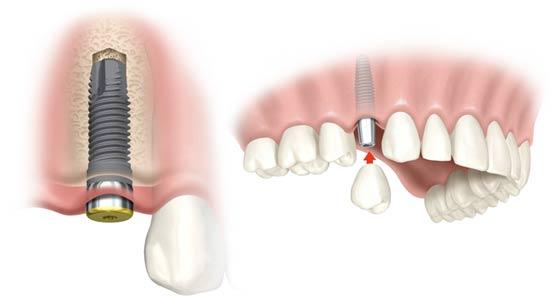 trồng răng implant mất bao lâu thời gian?