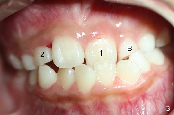 Sai lệch khớp cắn là bệnh lý răng miệng thường được hình thành từ những thói quen xấu từ bé