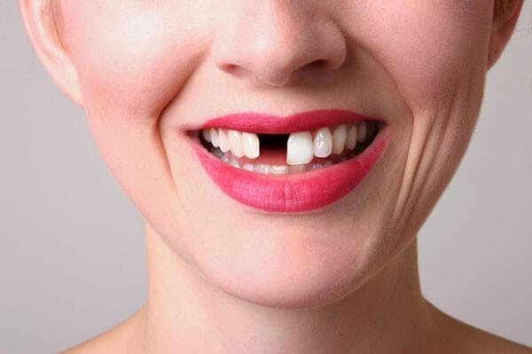 Mất răng cửa khiến bạn gặp khó khăn trong cuộc sống
