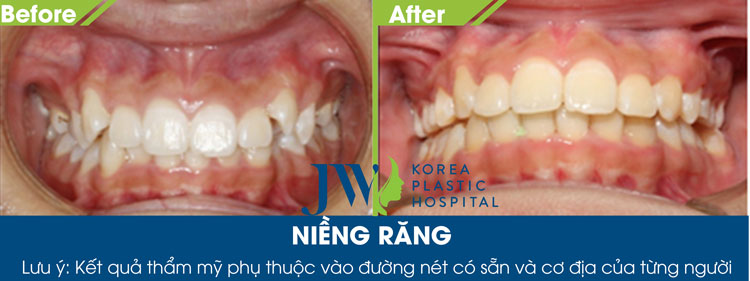 Hình ảnh khách hàng thay đổi sau khi lựa chọn phương pháp niềng răng thông minh