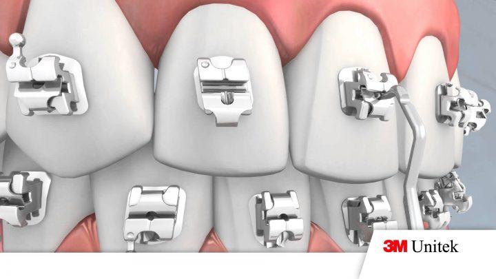 Niềng răng mắc cài kim loại tự buộc có nhiều ưu điểm vượt trội