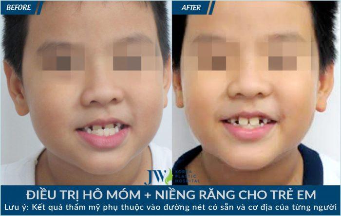 Niềng răng cho trường hợp răng bị móm