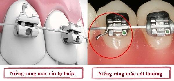 Sử dụng niềng răng mắc cài tự buộc sẽ mang lại hiệu quả tốt hơn, tuy nhiên còn phụ thuộc vào điều kiện và nhu cầu của mỗi người