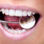 Niềng răng mặt trong có tốt không – Hiệu quả chỉ trong một giải pháp