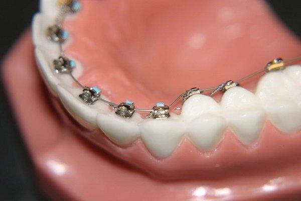Giữa hàng loạt các liệu pháp chỉnh nha hiện nay, niềng răng mặt trong được đánh giá là công nghệ thông minh mang đến nhiều ưu điểm vượt trội