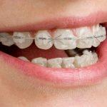 Niềng Răng Móm Không Phẫu Thuật Hiệu Quả An Toàn