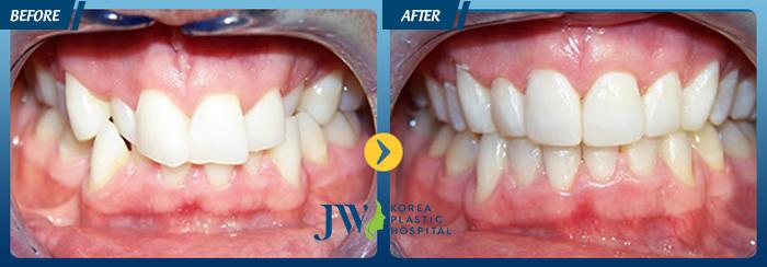 Niềng răng mắc cài sứ, nieng rang mac cai su, niềng răng, nieng rang, Nha khoa Bệnh viện JW Hàn Quốc