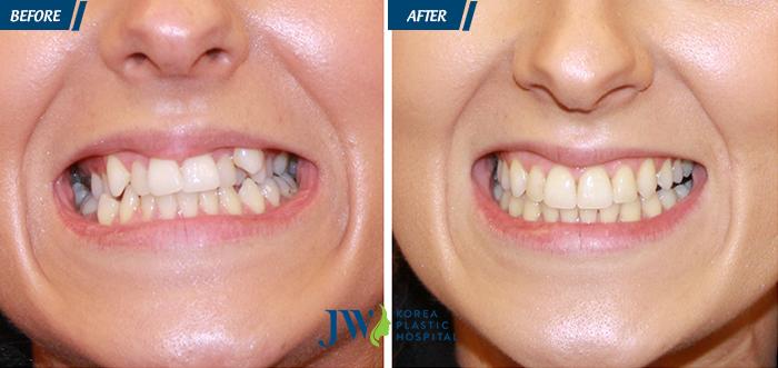 Hình ảnh niềng răng - Nha khoa JW