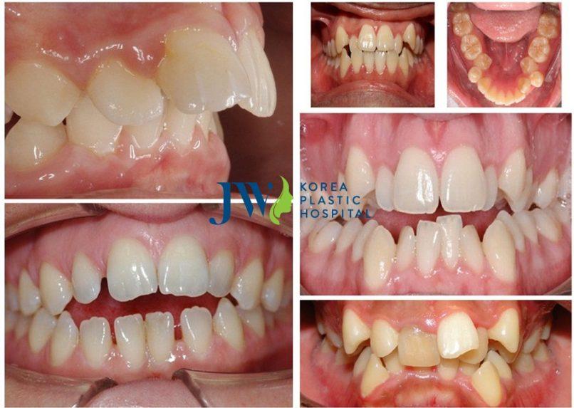Những trường hợp răng khuyết điểm cần đến công nghệ niềng răng thông minh