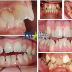 #3 phương pháp chỉnh sửa răng mọc lộn xộn hiệu quả