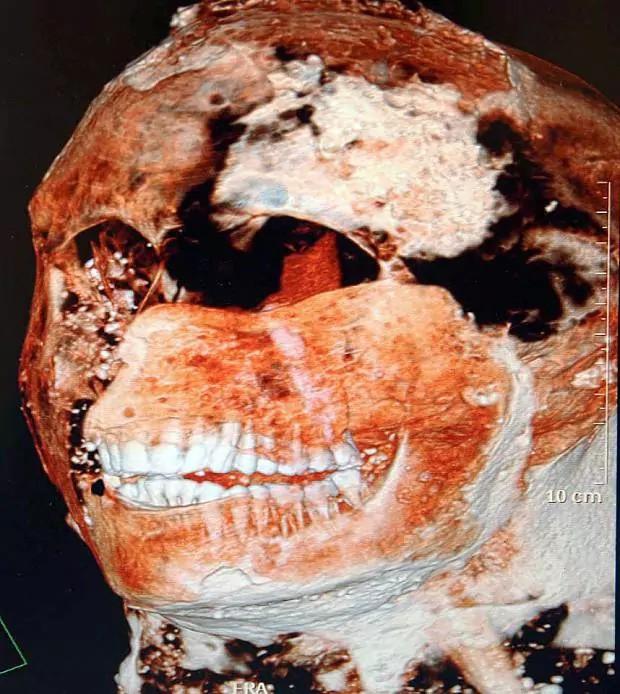 Bạn có thể thấy được hàm răng chắc khỏe và trắng sáng của người La MÃ cổ qua hình ảnh được quét CAT