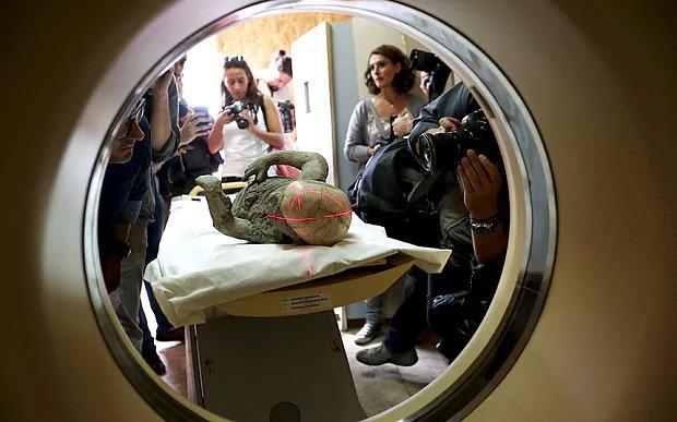 Một khuôn phôi thi thể nạn nhân vụ phun trào núi lửa ở Pompeii được đưa vào máy quét