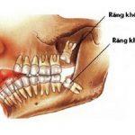 Mọc răng khôn có ý nghĩa gì không? [ Tư vấn ]