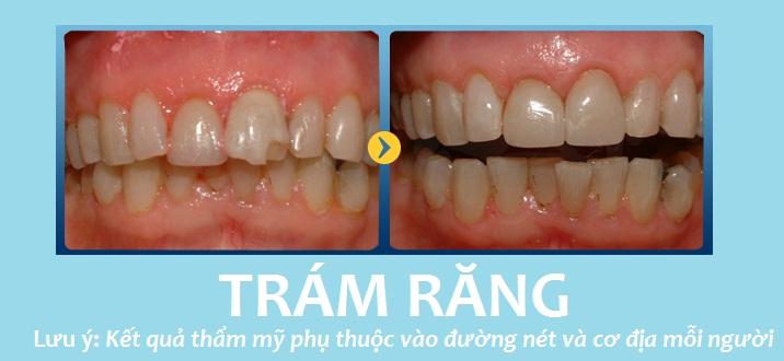 Nhiều khách hàng hài lòng khi thực hiện trám răng tại JW