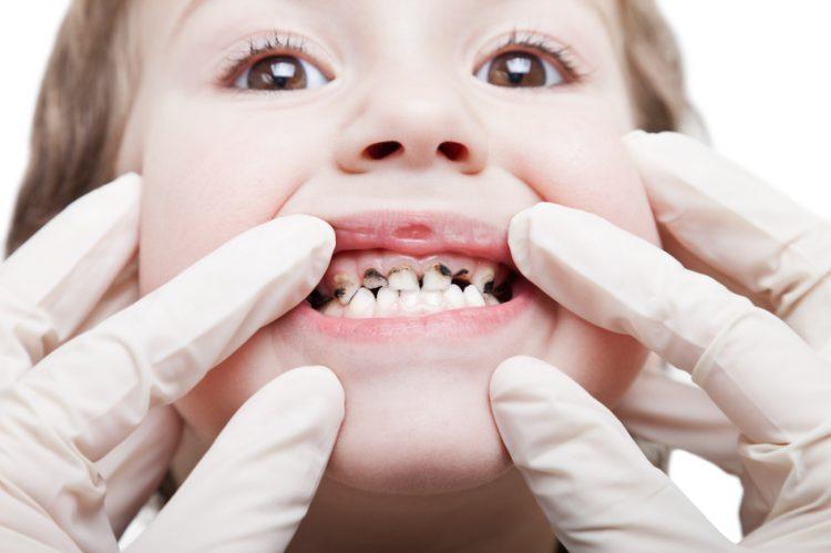 Sâu răng được xem là bệnh lý phổ biến mà mọi người đều có nguy cơ mắc phải, nhưng chủ yếu vẫn là trẻ em