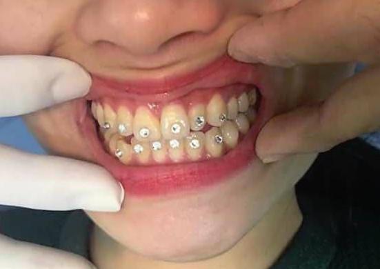 Sự hiện diện của 12 viên đá kim cương đính lên răng khiến bệnh nhân bị lở loét môi và không thể ăn nhai bình thường
