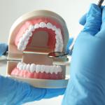 Nhổ răng khôn có hưởng gì không, thưa bác sĩ?