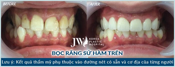 Hình ảnh khách hàng thực hiện bọc sứ tại Nha khoa Bệnh viện JW